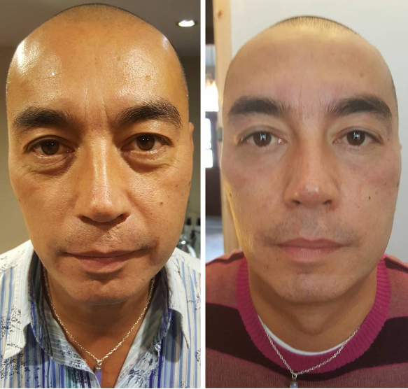 B&A_LipofirmPRO Facial - Copy