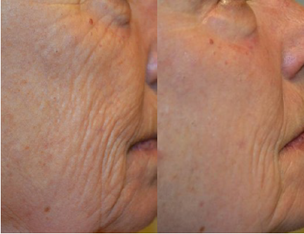 B&A_LipofirmPRO Facial2 - Copy