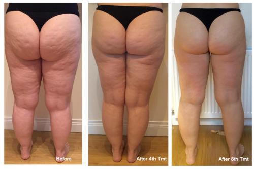 Lipofirm Pro Legs B&A
