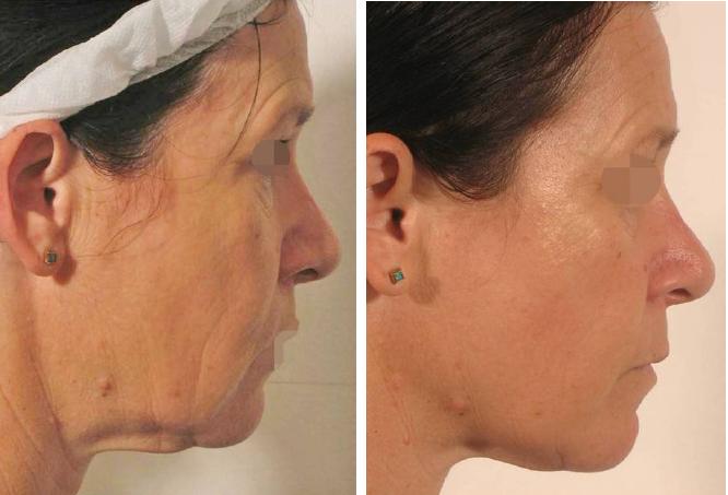 Lipofirm Pro face B&A2