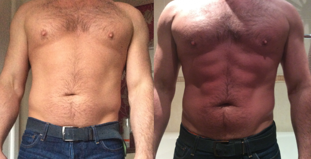 LipofirmPRO_b&A_afterONEtreatment_stomach_male