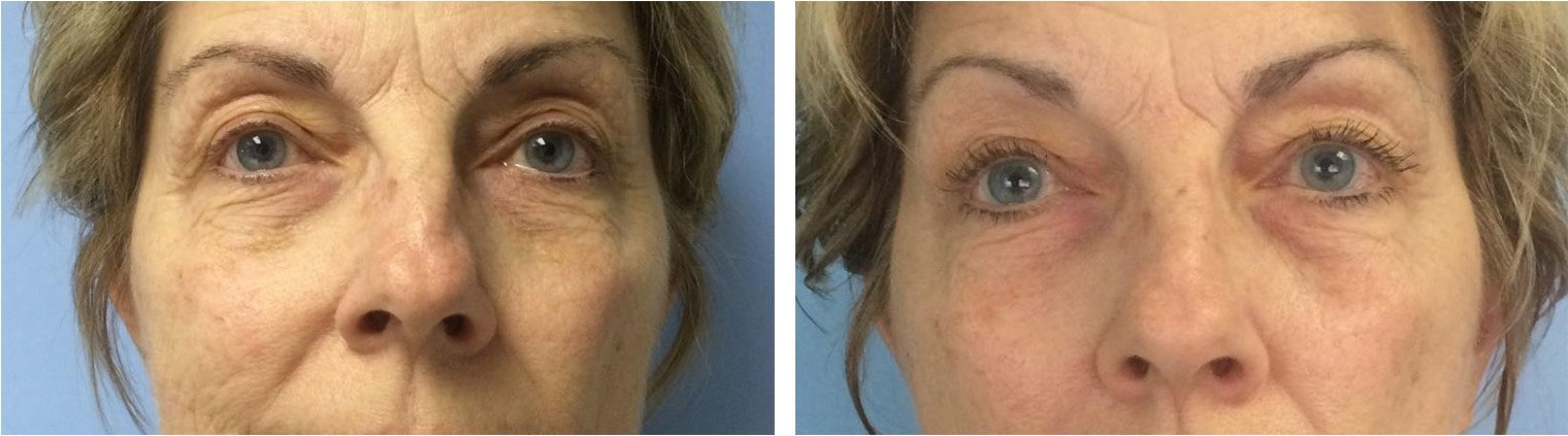 12 weeks after using Celluma 3 times a week for 4 weeks.