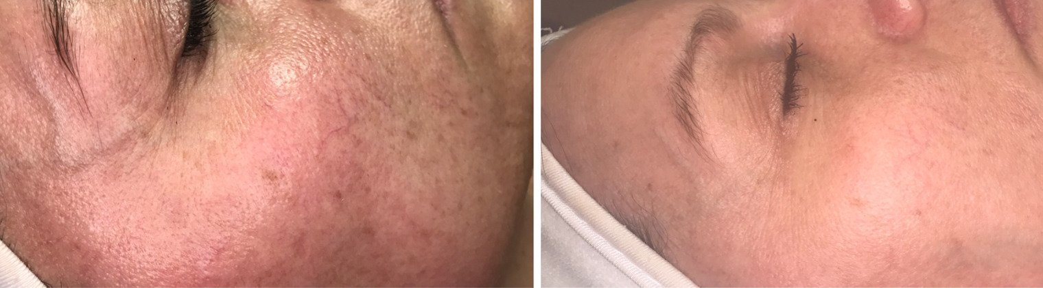 9 treatments total over 4.5 weeks