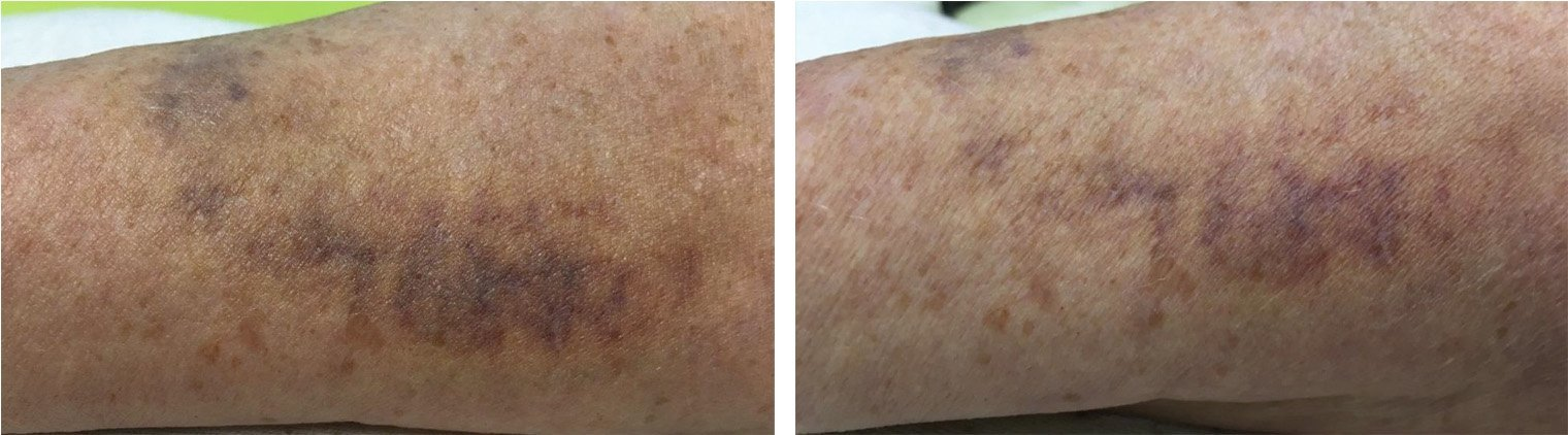 Arm bruise 20 hours after 1 Celluma treatment